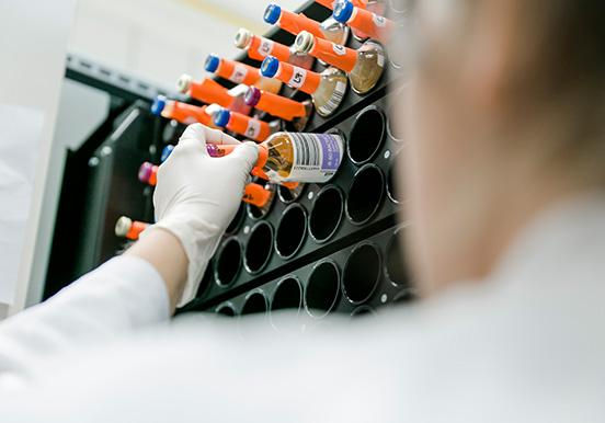Proben von Laboruntersuchungen werden einsortiert